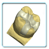 Реставрация зубов вкладками