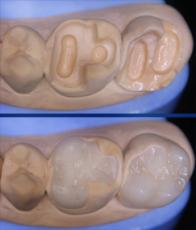 зубная вкладка